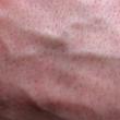 Blue Rubber Bleb Nevus Syndrome